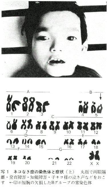 12 番 染色体 異常